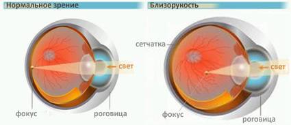 Почему с плохим зрением нельзя работать на высоте
